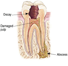root-canal-3
