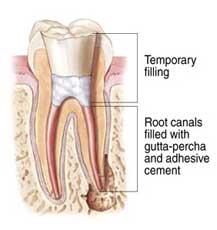 root-canal-5