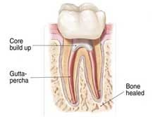 root-canal-6
