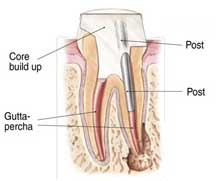 root-canal-7